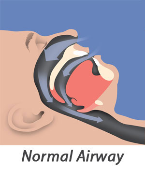 sleep-apnea-illus-01